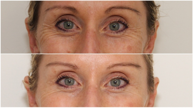 Wrinkle relaxing injections used to soften crows-feet and lift the brow