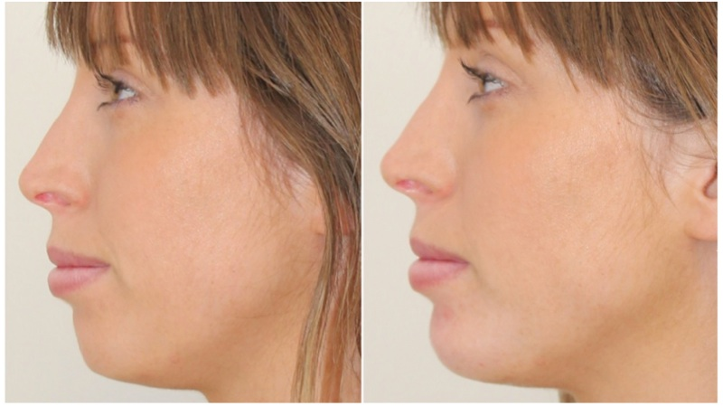 Volumising filler used to increase chin projection to enhance profile