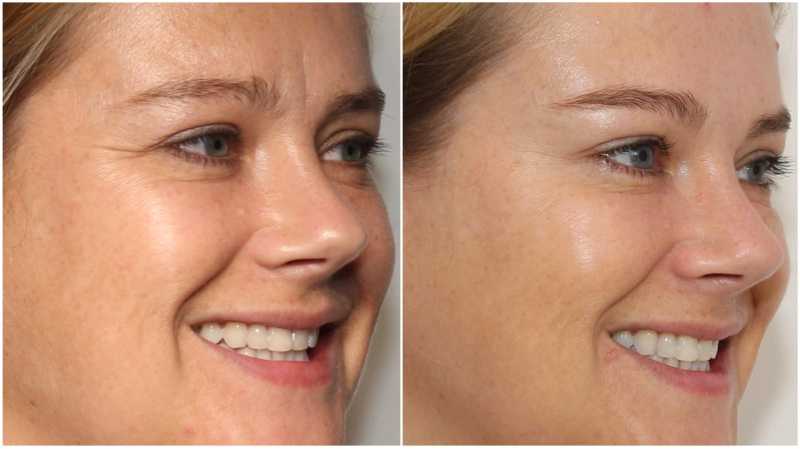 Anti-wrinkle injections used to soften frown, forehead and crowfeet, brow lift also achieved using anti-wrinkle injections. Hydrating filler used to soften under eye hollows