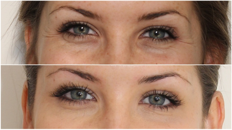Crows feet softened and brow lift achieved using anti-wrinkle injections
