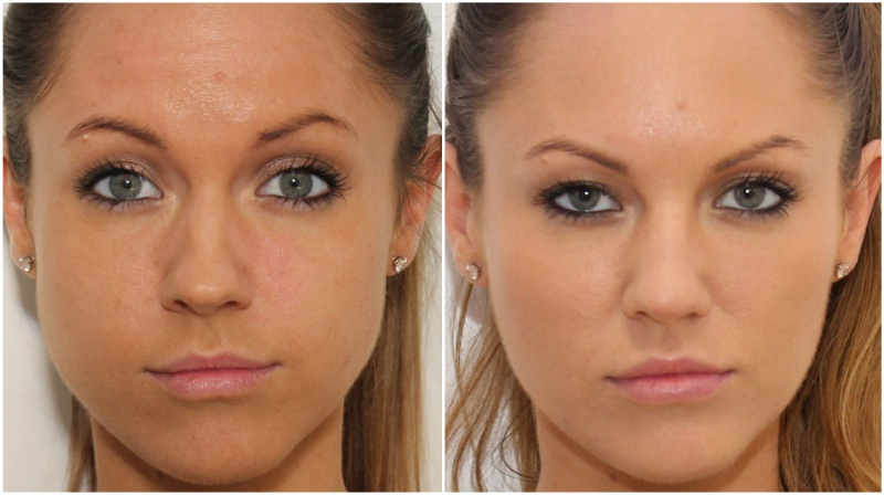Facial Slimming and jaw definition achieved using anti-wrinkle injections