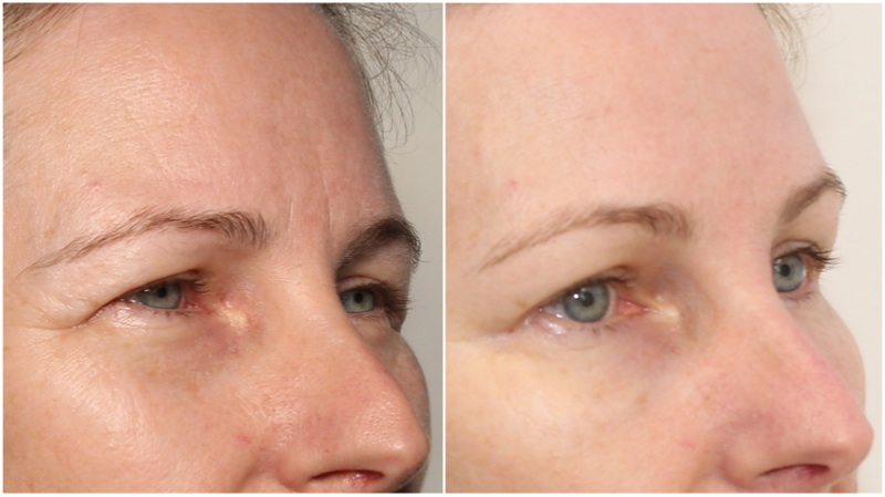 Hydrating filler used to soften under eye hollows. Anti-wrinkle injections have also been used to complete the rejuvenation