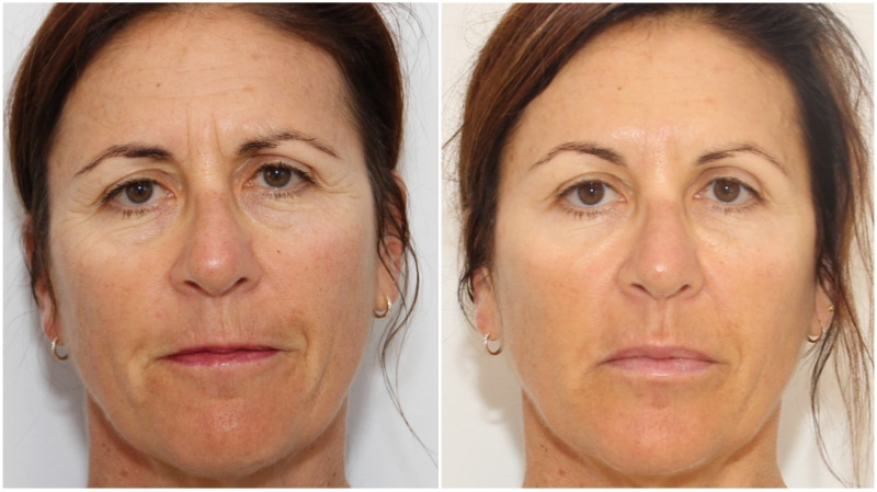 Volumising filler to the replace lost cheek projection, hydrating filler used to soften lip lines (smokers lines), under eye hollows, and enhance lip volume. Forehead, frown lines , smokers lines and crows feet treated with anti-wrinkle injections