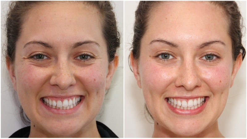 Crows-feet, frown and forehead lines softened using anti-wrinkle injections