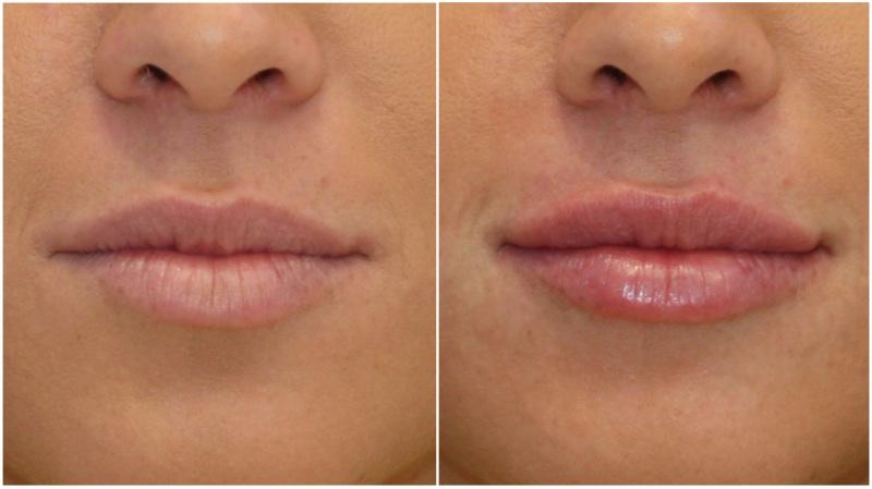 Lip volume enhanced using hydrating lip filler