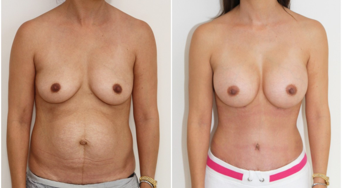 Mummy makeover with a breast augmentation using 300cc mod plus profile implants complemented with a waist tightening, abdominal contouring tummy tuck.