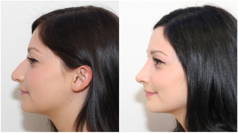 Rhinoseptoplasty used here by Dr M to reduce the dorsum/bridge of the nose, shape the nasal tip and improve the facial silhouette.