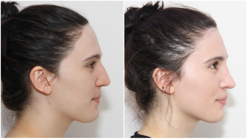 Bent nasal septum and nose straightened, dorsum and nasal tip refined by open rhinoseptoplasty.