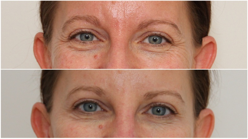 Frown lines and crows feet softened using anti-wrinkle injections