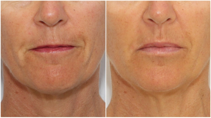Lip enhancement and treatment of 'smokers lines' using a hydrating dermal fillers. Anti-wrinkle injections also used to further soften the lines