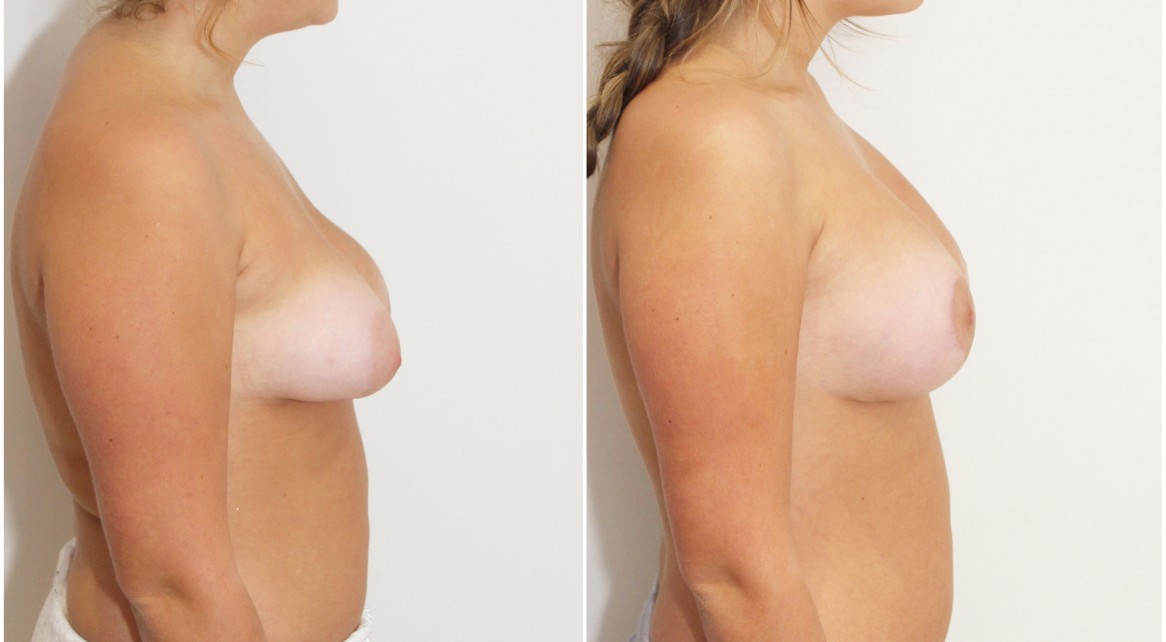 Early 20s, grade 2 tuberous breasts bilaterally, vertical reshape and lift with anatomical 280cc implants.