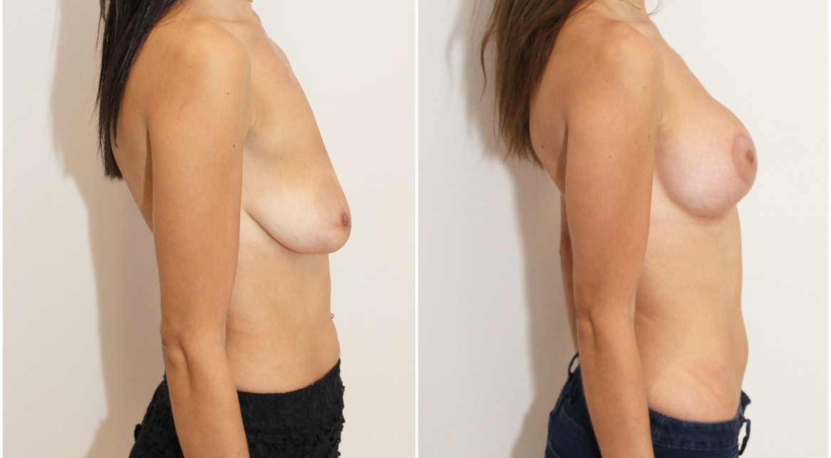 Breast lift + implants with subfascial placed, round style 325g implants.