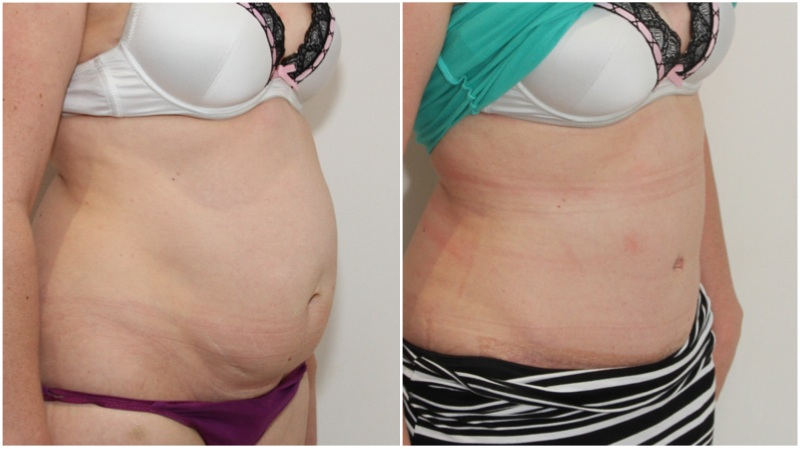 Muscle-tightening tummy tuck used here to correct abdominal muscle weakness and separation.