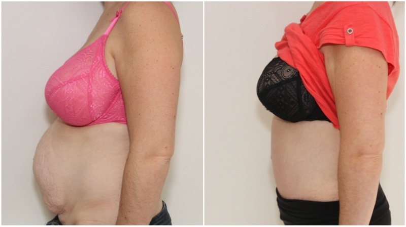 Full muscle-tightening tummy tuck used to remove all excess skin and tighten all abdominal musculature post multiple pregnancies in this mum.