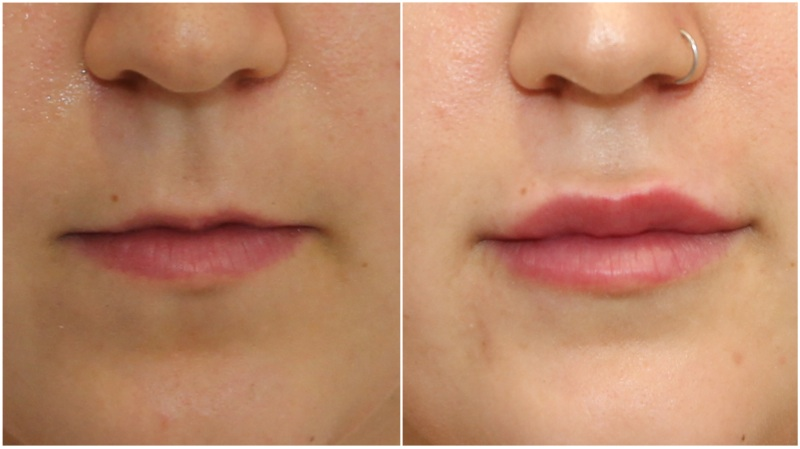 Lip balance achieved using hydrating lip filler