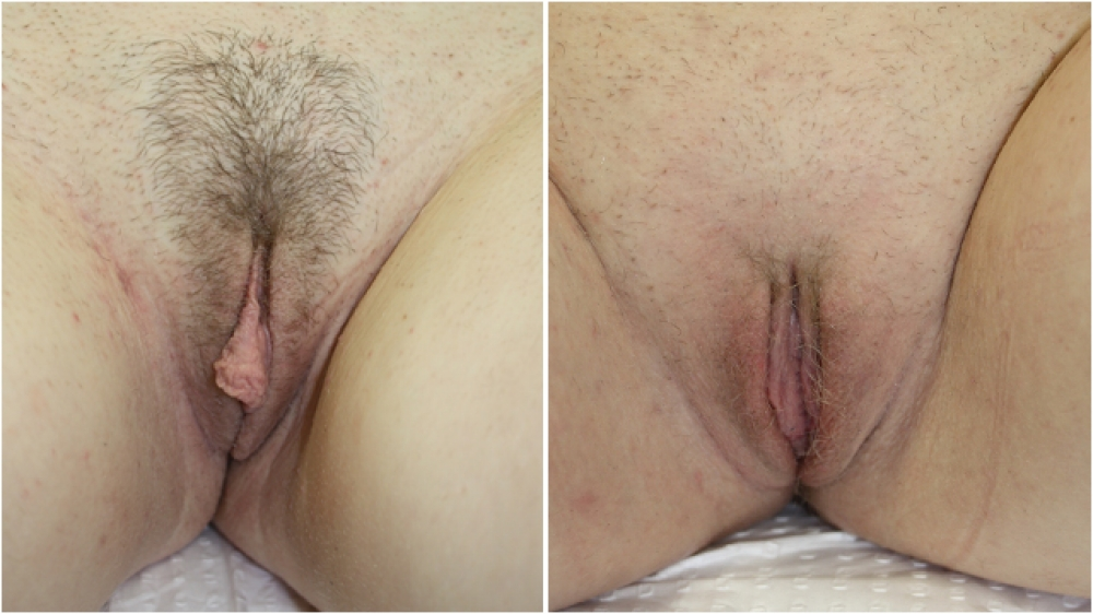 This young lady was very self conscious of her protruding labia minora (inner lips). She underwent a labiaplasty procedure to improve both comfort and appearance of the region. The surgery is performed with hidden scars.