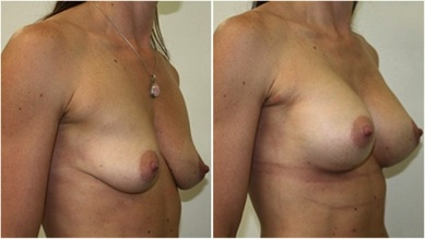 Breast-Augmentation-to-Correct-Droop