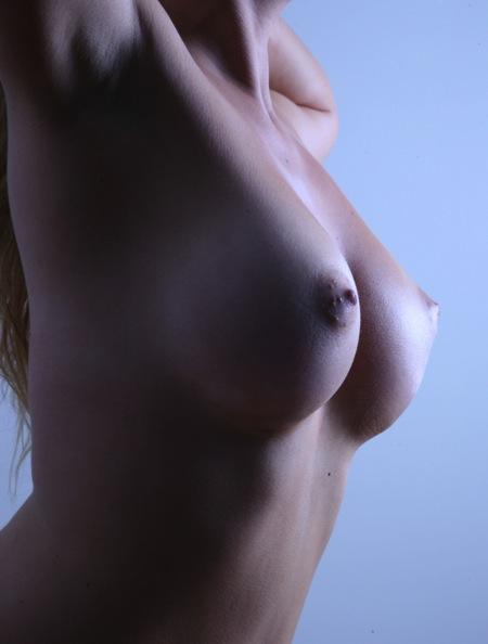 round-implants