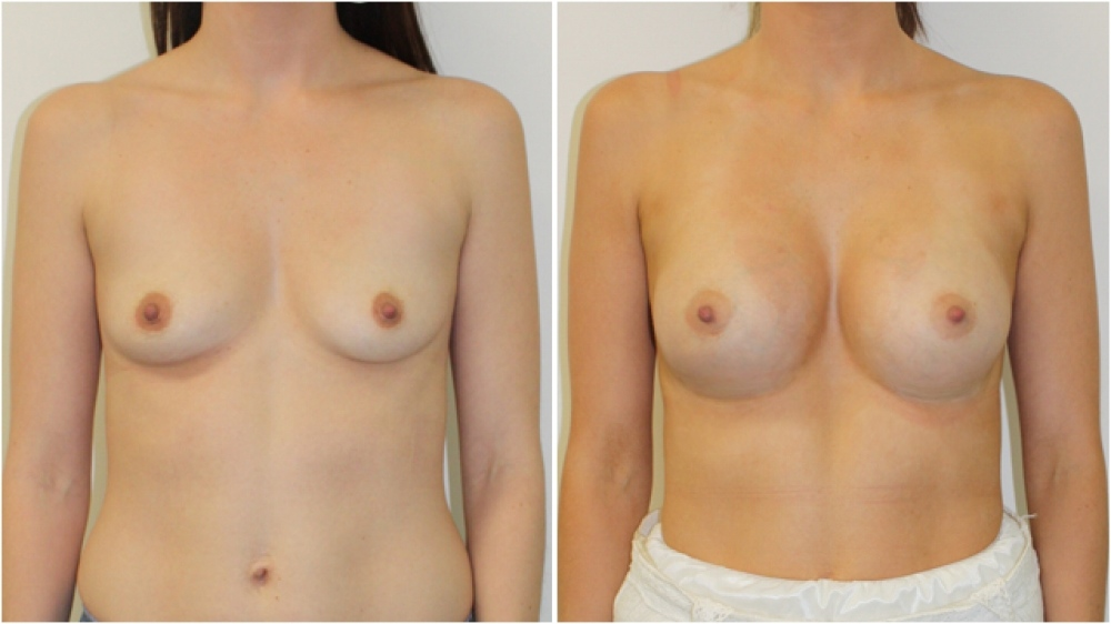 Enhanced-style look achieved by Dr Miroshnik with the use of 360g, extra high profile implants.