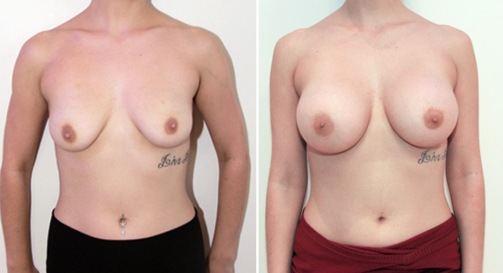 Mid 20s, breast augmentation procedure performed using 390g anatomical (teardrop) implants with subfascial placement.
