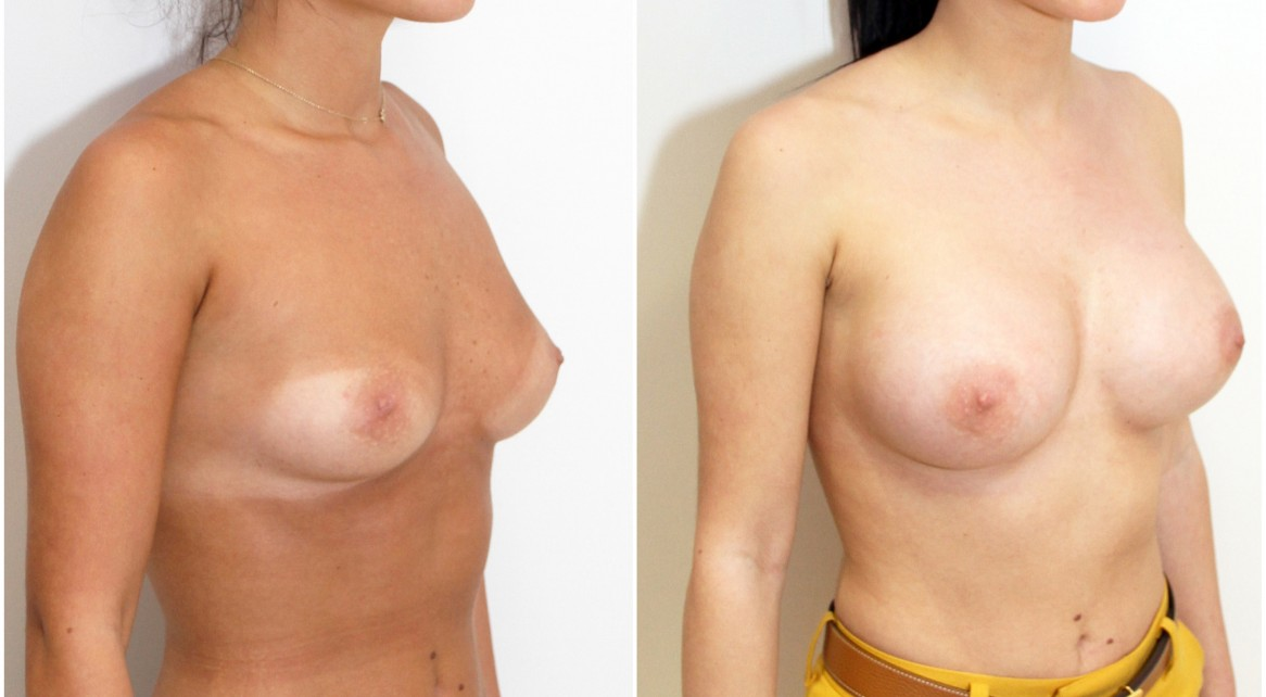 20s, 315g anatomic memory gels, dual plane placement, emphasis on side curvature with wider style anatomics.