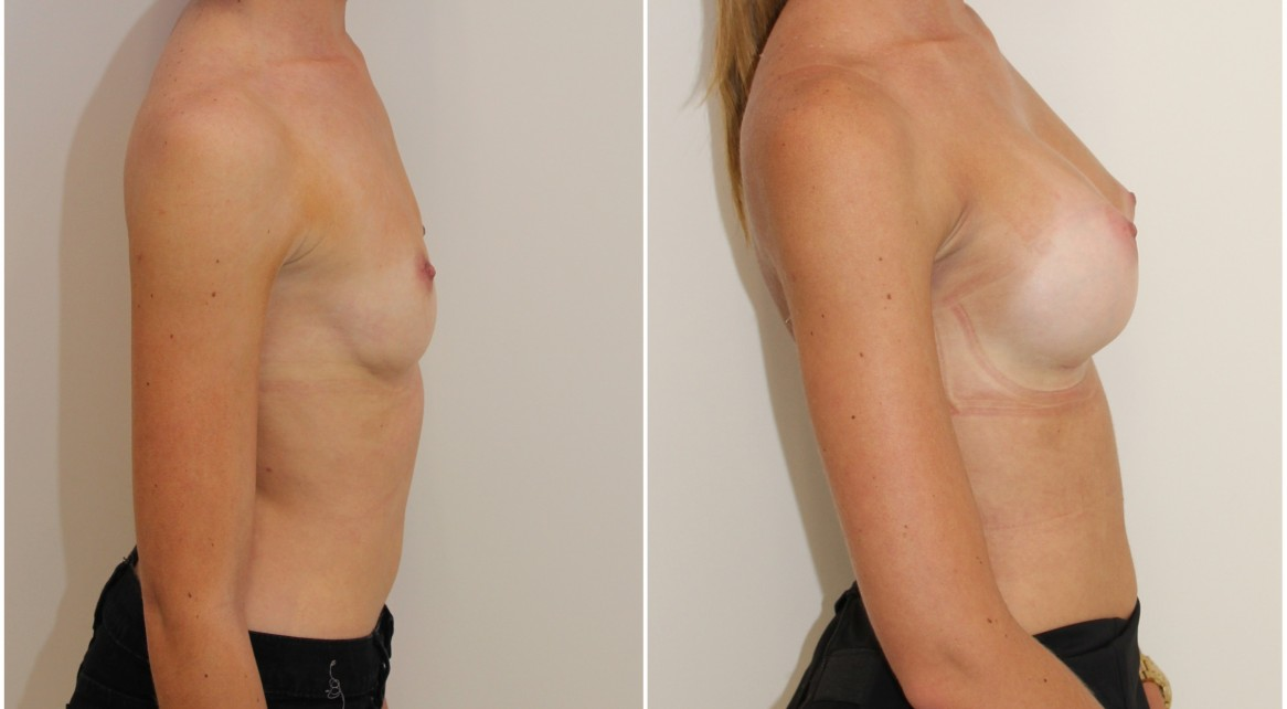 20s, enhanced style look achieved with 315g high profile, P-URE, anatomical implants, dual plane 2 placement.