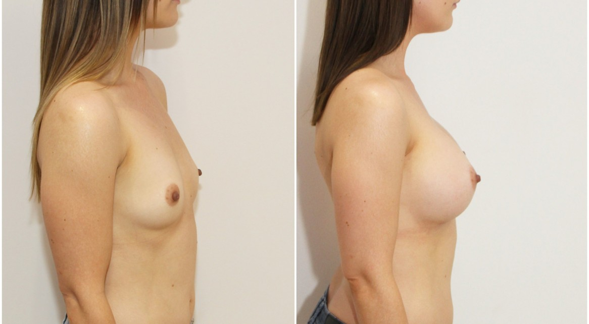 Early 20s, 315g anatomical, dual plane 3 placement.