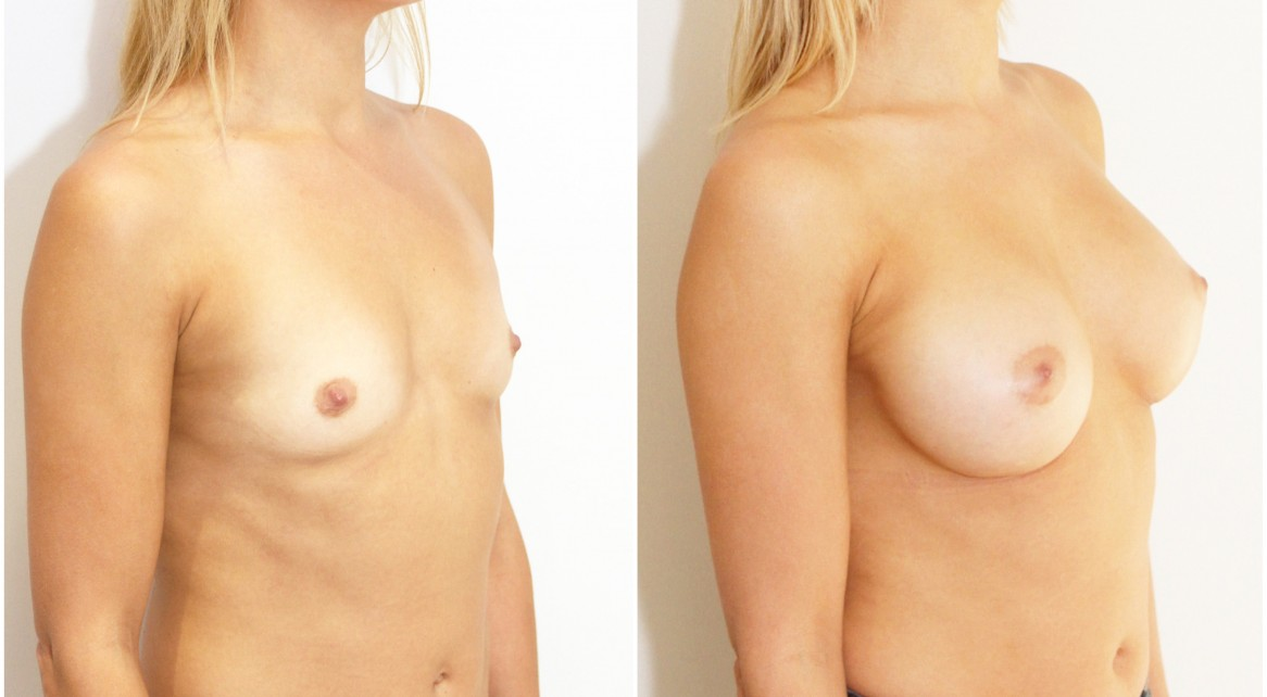 20s, 330cc mod plus profile anatomical implants, dual plane 2.
