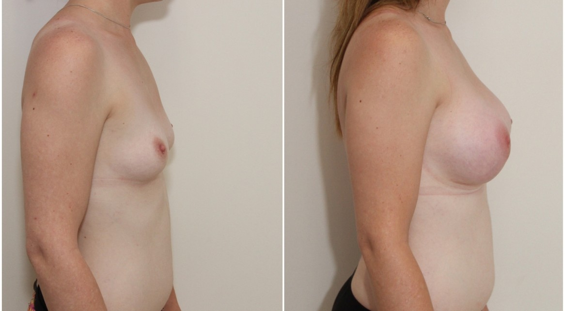 30s, 360g anatomical, moderate profile, submuscular placement.