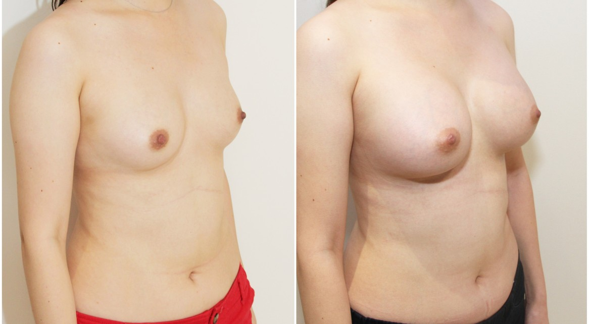 20s, 410g full projection anatomical implants, submuscular placement.