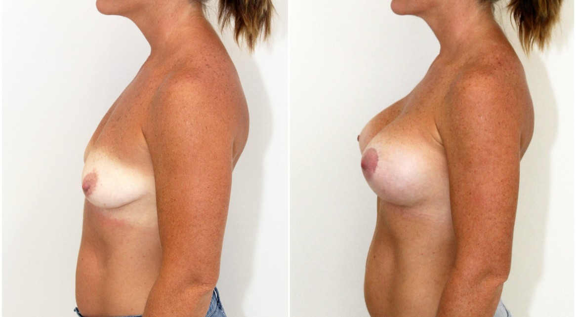 30s, 440cc high profile, anatomical, dual plane 3 positioned, peri-areolar crescent lift on the left breast to correct symmetry.