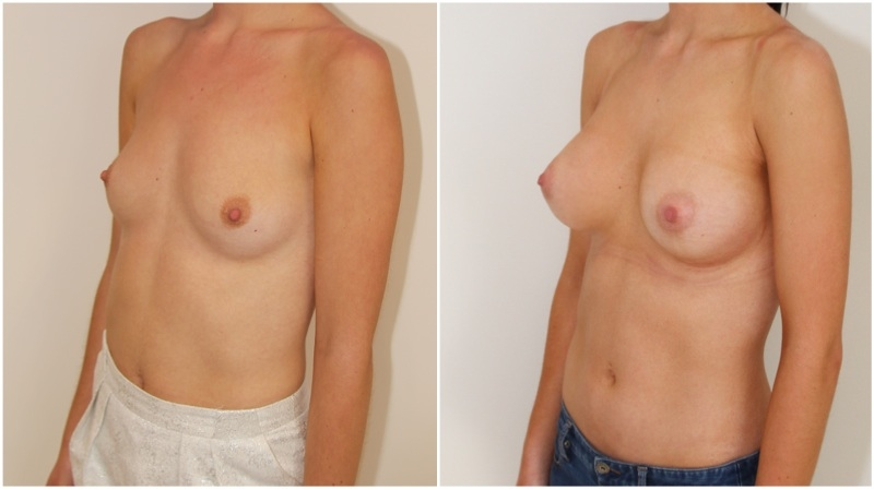 20s, shape creation with 470g extra high profile, dual plane 3, anatomical P-URE style implants.