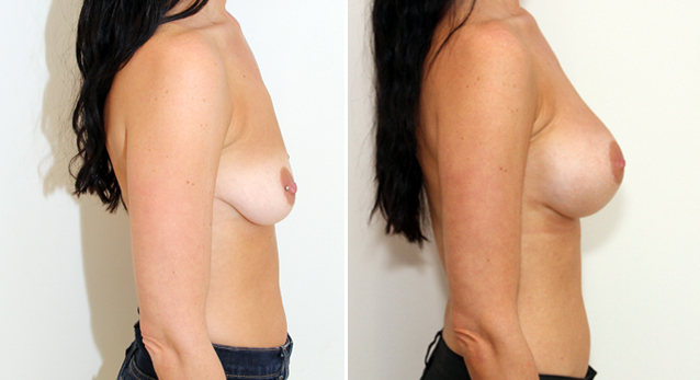 Enhanced style look created with 375cc, anatomical, dual-plane positioned, memory gel implants.