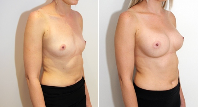 Subtle-style augmentation by Dr M with dual-plane positioned, 315g anatomical implants.
