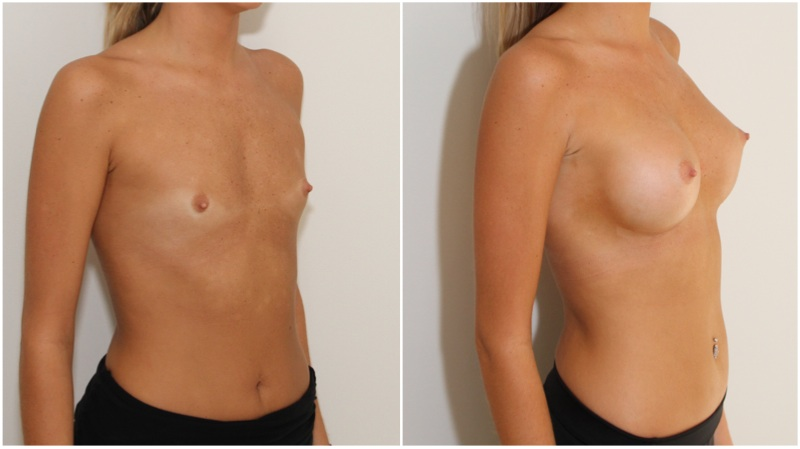 Early 20s, AA cup, minimal breast tissue ('blank palette'), natural shape created with 375g memory gel, anatomics.