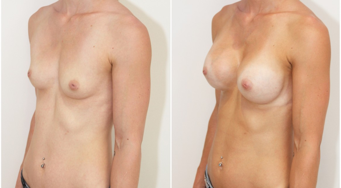 20s, athletic body, dual plane 2, anatomical 330g implants.