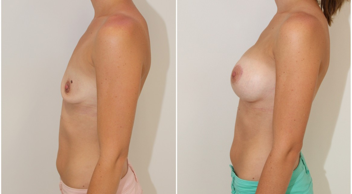 30s, 420cc moderate plus profile, high cohesive gel, anatomical implants, dual plane 2 placement. A crescentic periareolar lift has also been performed on the left side.