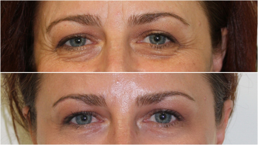 Dramatic eye rejuvenation achieved with a combination of injectable hyalauronic acid filler and anti-wrinkle injections. This 30 minute in-room treatment can take many years off a person's appearance.