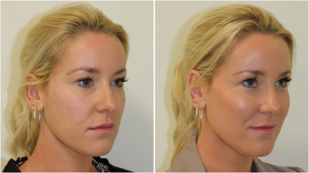 Facial filler for chin augmentation