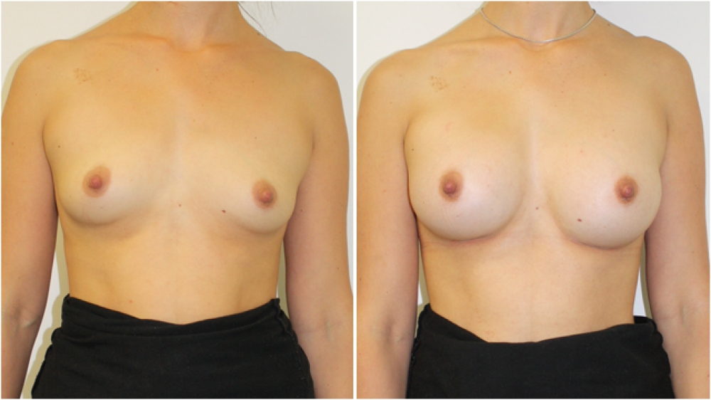 Subtle-style breast augmentation by Dr Miroshnik using 235g anatomics, moderate profile, dual-plane positioned