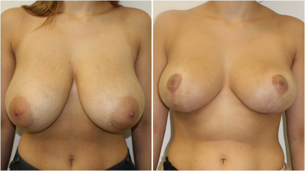 22yo female, vertical short-scar breast reduction and lift, nipple/areolar reshaping, approx 450g of breast tissue removed from each side, E/F cup -> D cup.