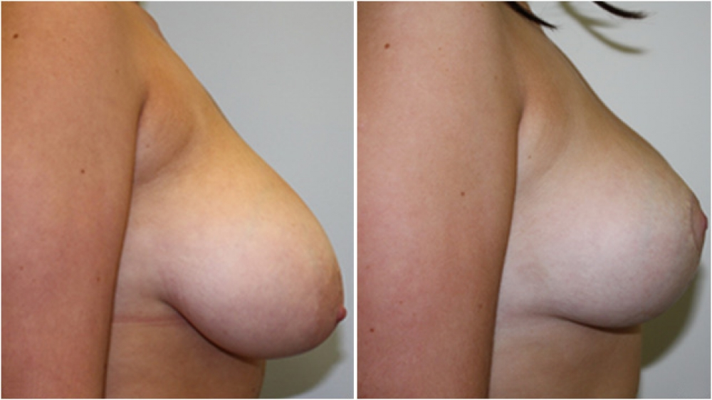 20yo, vertical short-incision breast lift & nipple/areolar reshaping, no implants used, patient's own tissue reshaped into a more attractive breast.