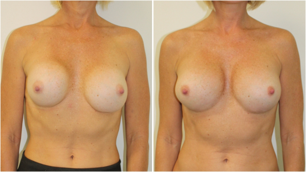 Early 40s, previous breast augmentation 10 years prior performed elsewhere with smooth round implants placed in a subglandular pocket. Wide cleavage, poor shape and capsular contracture corrected by Dr Miroshnik with 360g moderate profile, P-URE implants.