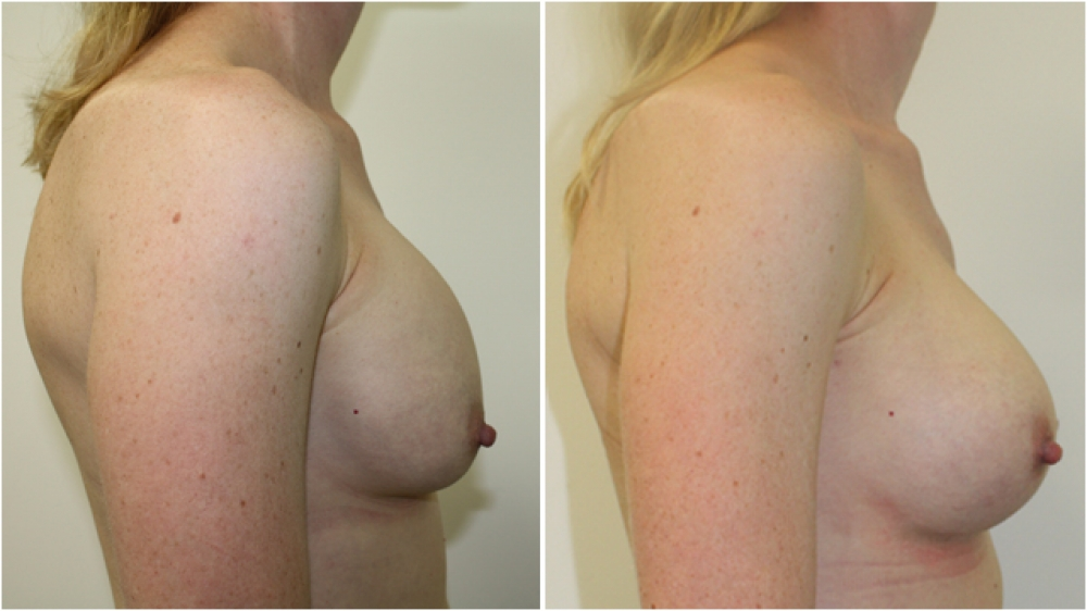 Late 30s, previous breast augmentation 10 years prior done elsewhere with smooth saline implants. Poor shape, malposition and capsular contraction corrected by Dr Miroshnik with neo-subpectoral placed, 425cc high profile, anatomical (teardrop) implants.
