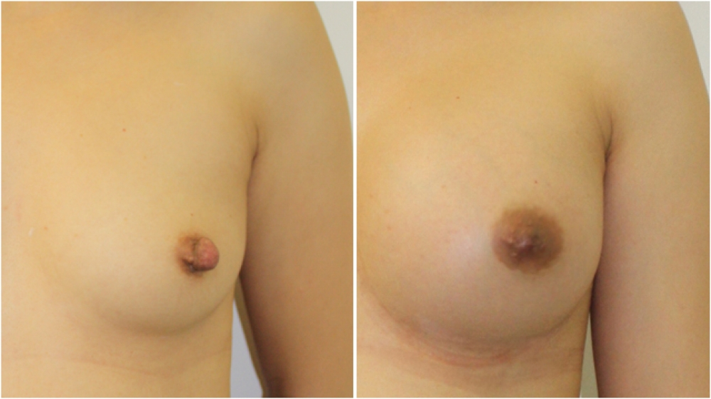 Nipple reduction surgery has been done here to reduce both the height and width of the nipple.
