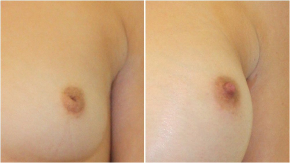 Inverted nipple repair has been done here to allow the nipple to protrude to a normal level.