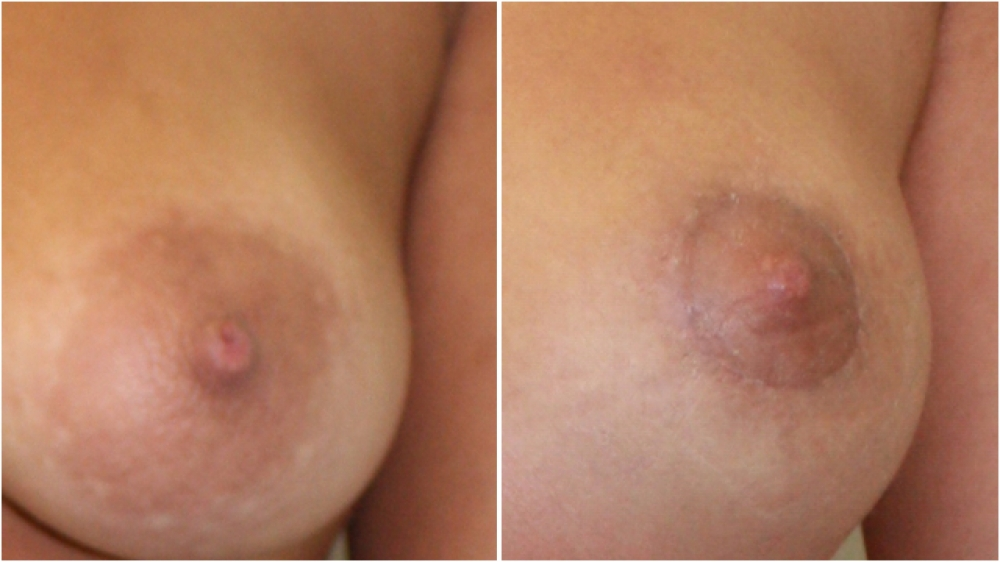 Areolar reduction surgery has been done here to make the pigmented areolar smaller and hence better match the new breast.