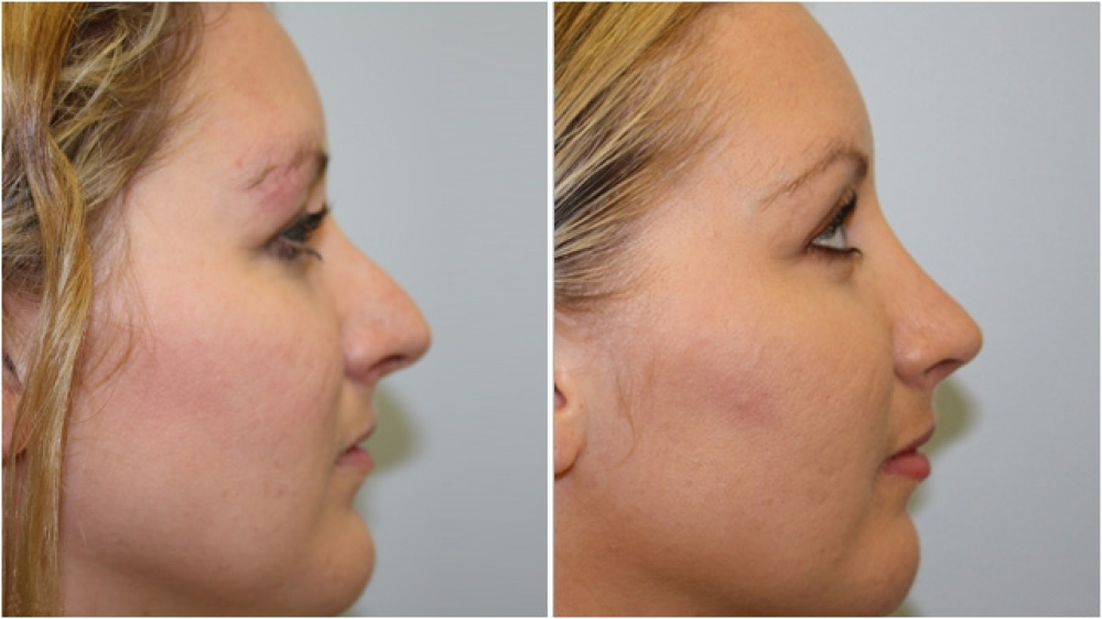 20s, nasal profile adjustments to balance features with an open rhinoplasty procedure.