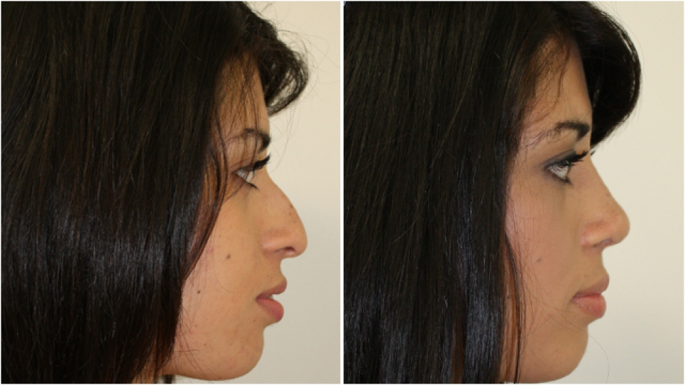 18yo F, large asymmetrical dorsal nasal hump, droopy low-hanging tip and poor nasal shape improved and made more feminine with an open rhinoplasty procedure.