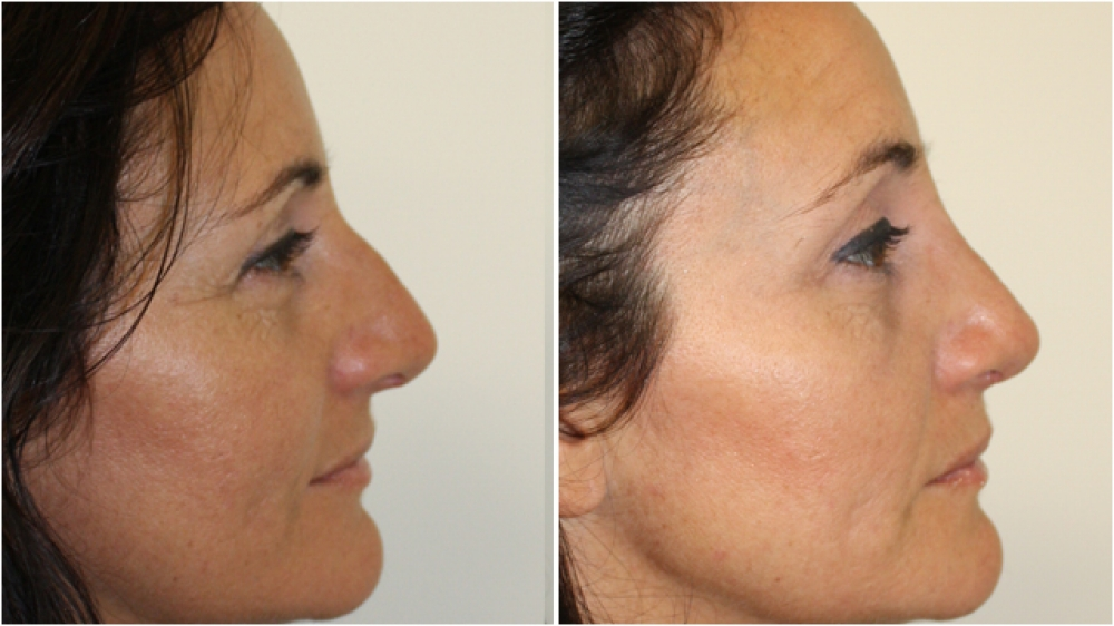 Mid 40s, open rhinoseptoplasty procedure used to improve profile and lift nose tip.